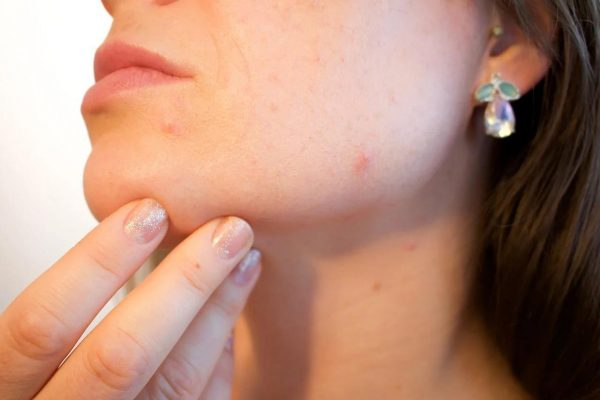 Acne Guide- How Acne is Formed, Prevented and Treated